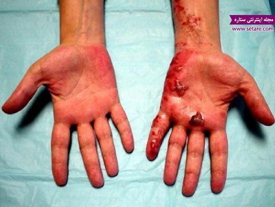 پماد سوختگی تتراسایکلین موثر در درمان سوختگی