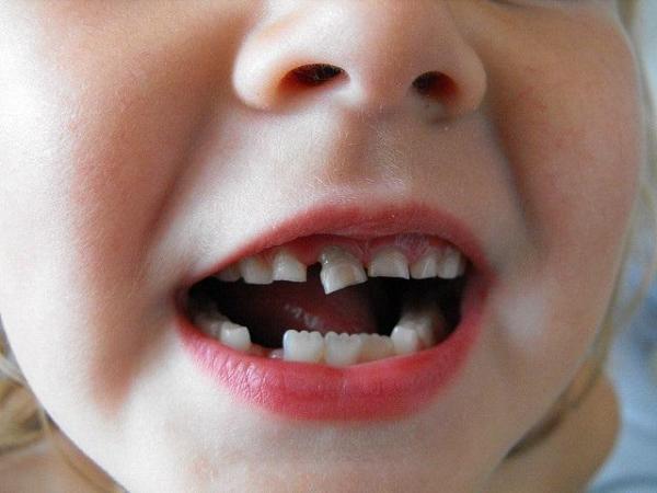 زمان افتادن دندان شیری چه موقع است؟